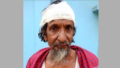 রূপগঞ্জে মুক্তিযোদ্ধাকে কুপিয়ে জখম, স্ত্রীর শ্লীলতাহানি