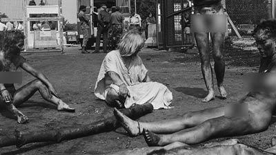 ৭২ বছর পরও নাগাসাকিতে ফ্যাটম্যানের তেজস্ক্রিয়তার প্রভাব