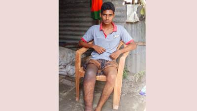 অর্থাভাবে চিকিৎসা বন্ধ দরিদ্র কলেজ ছাত্র সুজনের